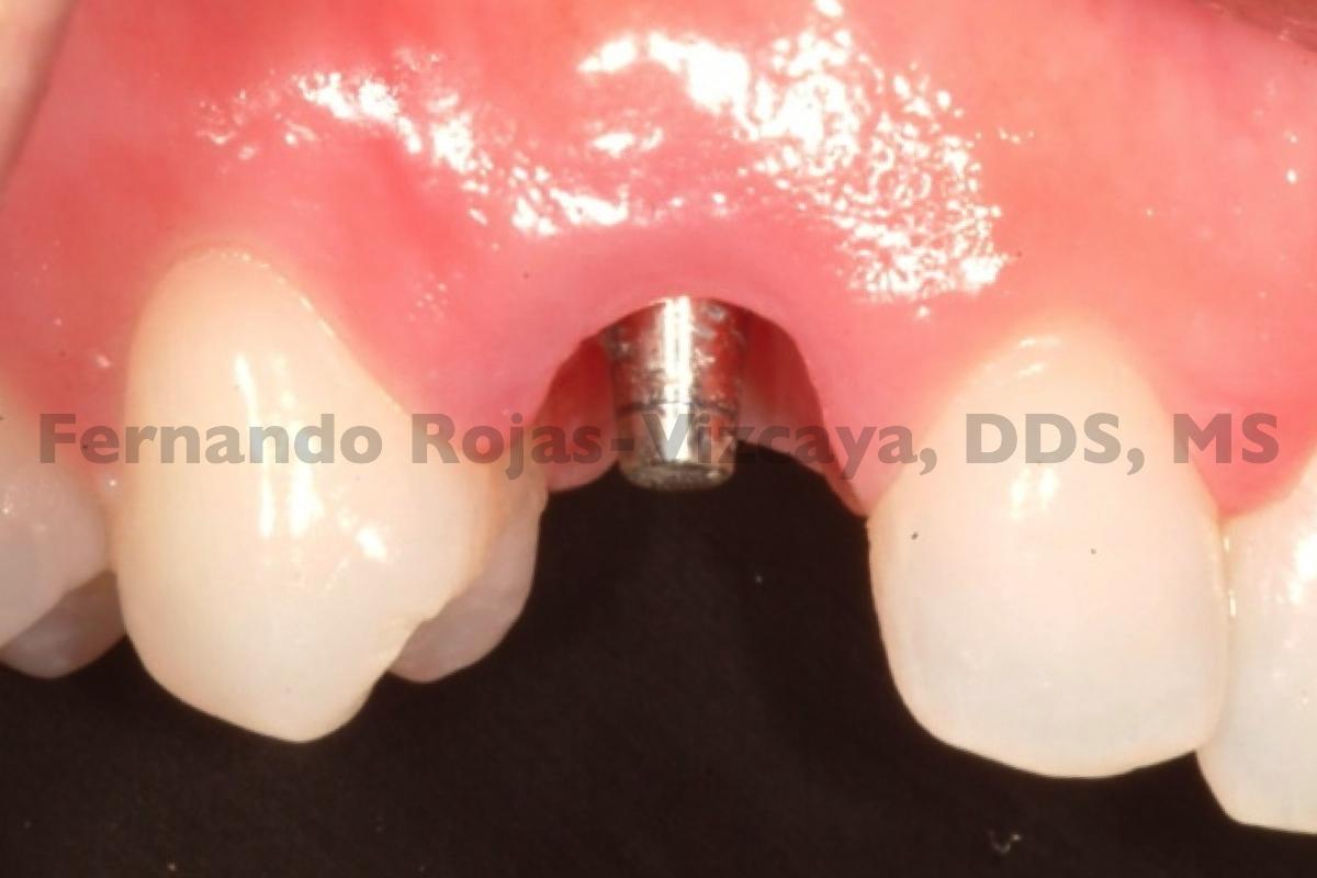 implante-para-reemplazar-canino-2