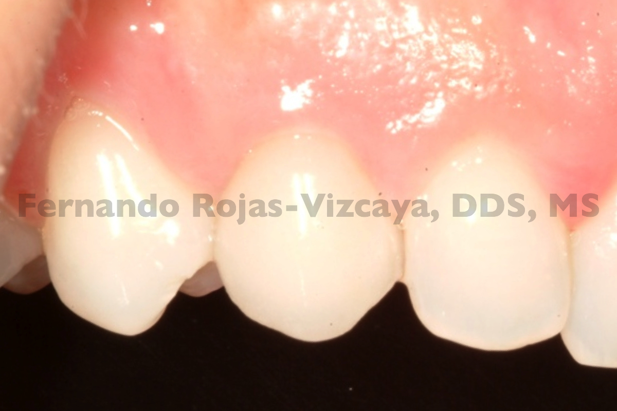 implante-para-reemplazar-canino-3