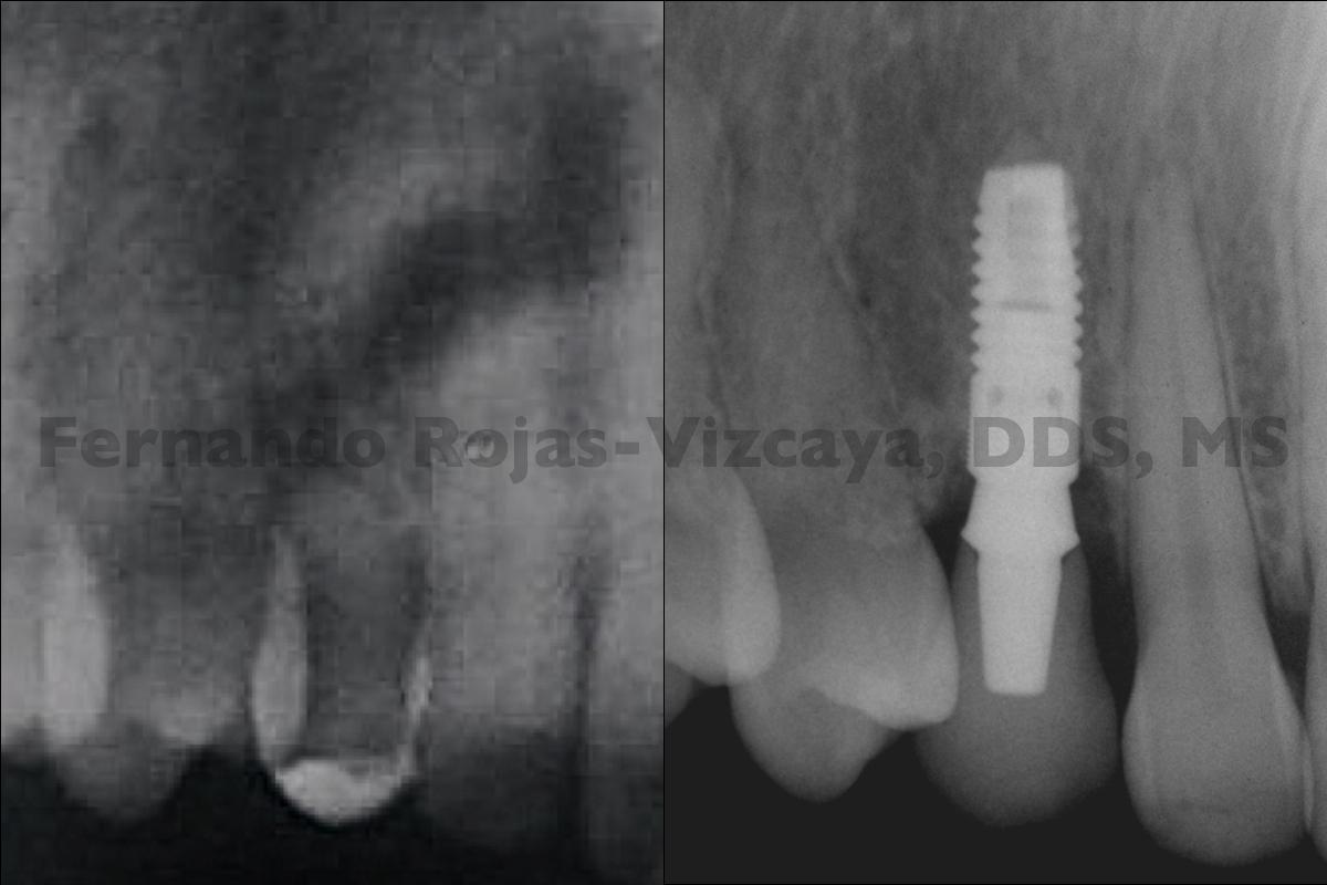 implante-para-reemplazar-canino-4