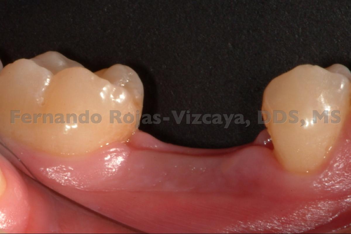 implante-para-reemplazar-molar-1