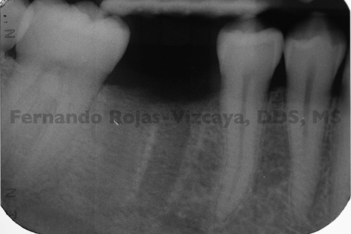 implante-para-reemplazar-molar-2