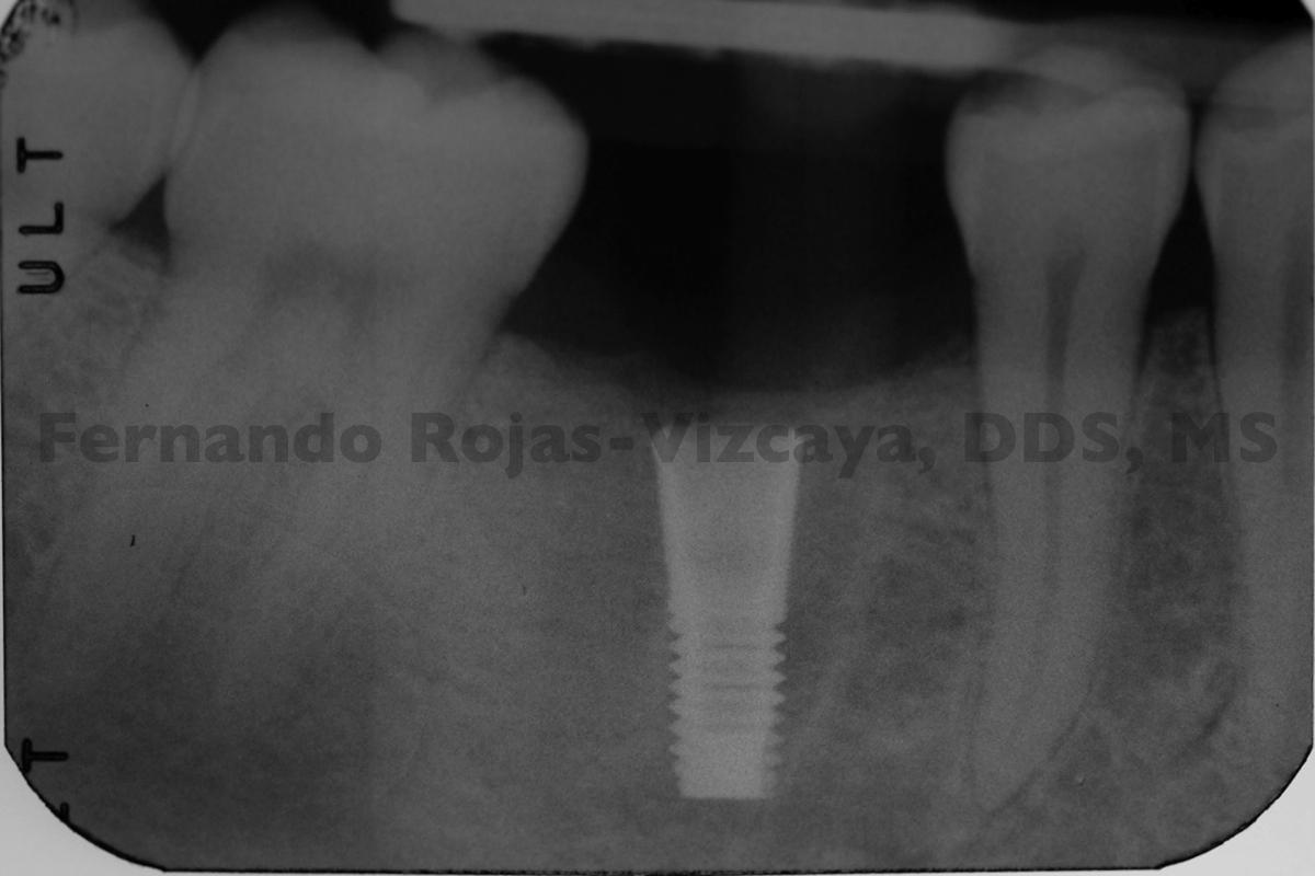 implante-para-reemplazar-molar-4