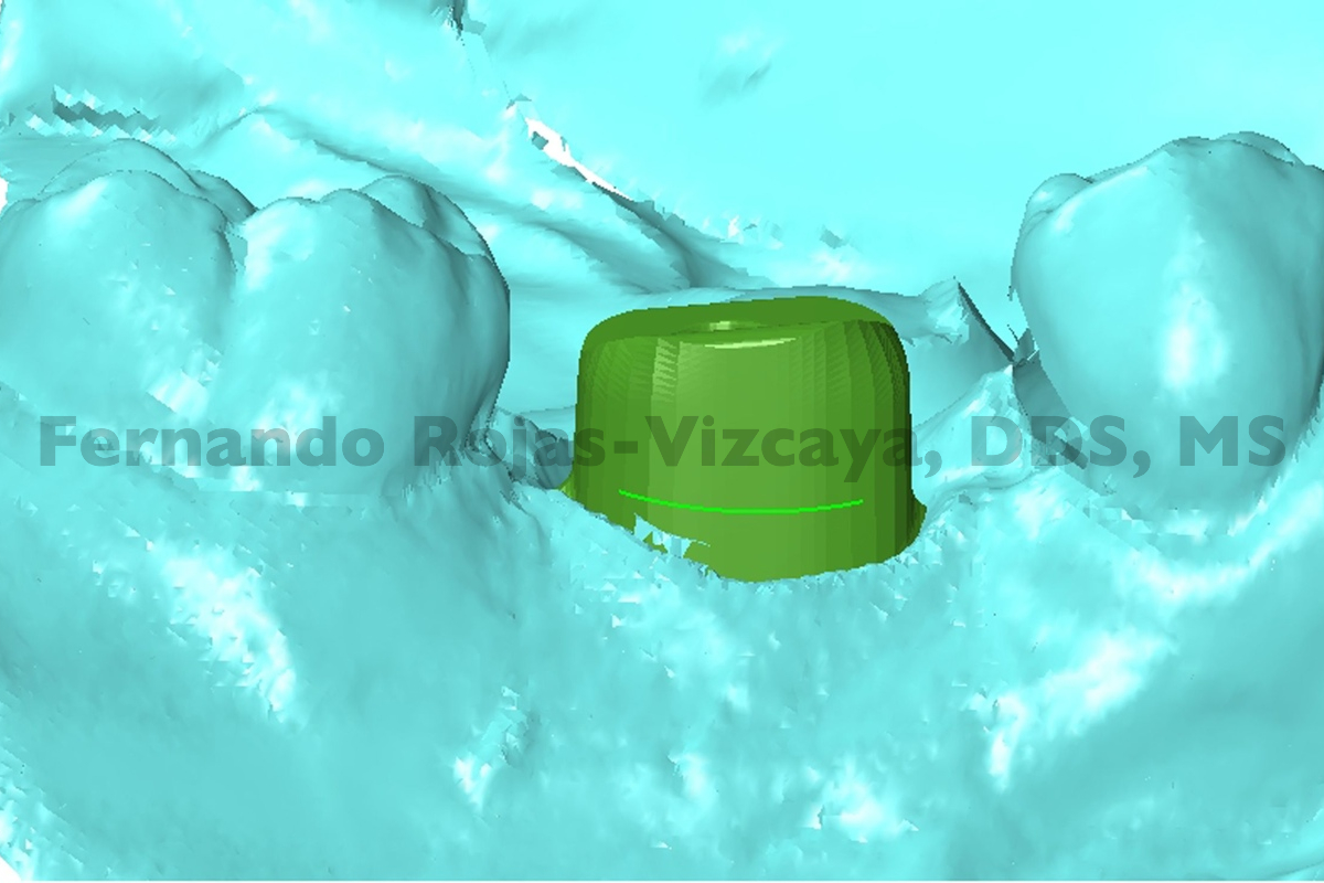 implante-para-reemplazar-molar-5