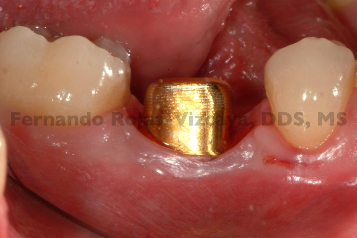 implante-para-reemplazar-molar-6