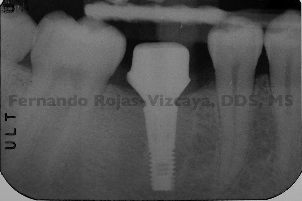 implante-para-reemplazar-molar-7