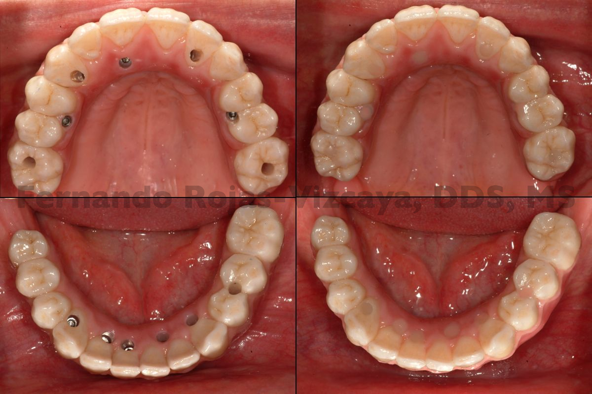 implantes-protesis-fija-6