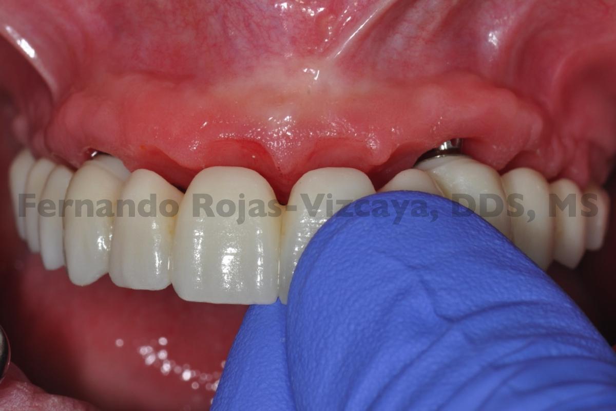 protesis-fija-cuatro-implantes-3