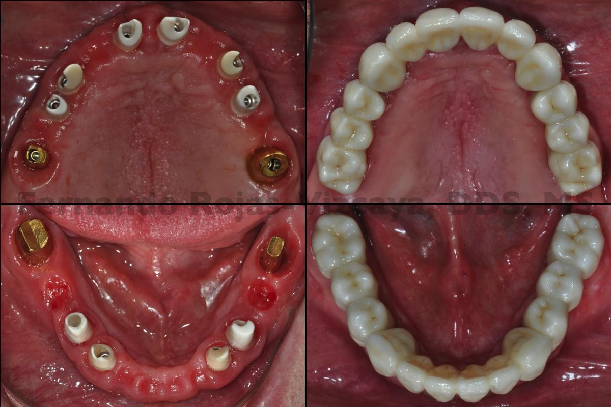 restauracion-fija-implantes